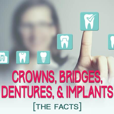Crowns, Bridges, Dentures & Implants: the Facts