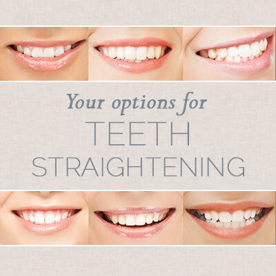 Your Options for Teeth Straightening