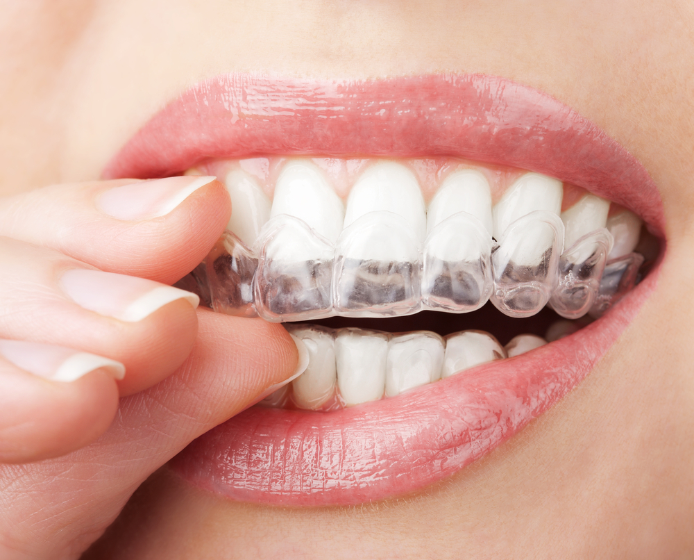 Whitening strips and their impact on your dental health