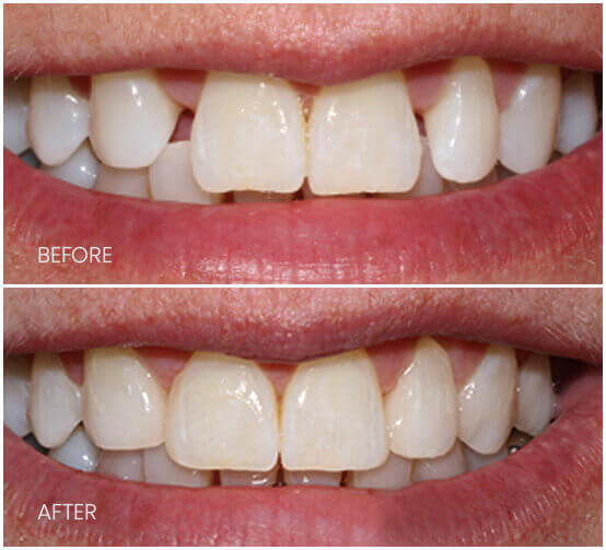 Before-After-MultipleDiastemaClosure