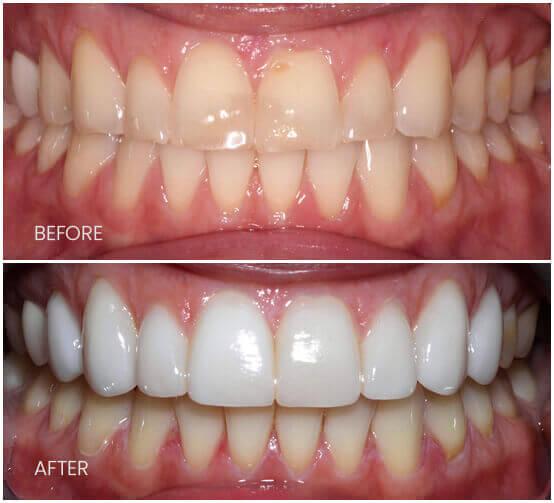 Before-After-Upper8Veneers