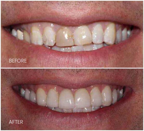 Before-After-VeneerSupper