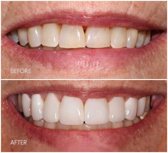 Before-After-VeneersDS