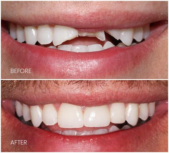 Before-After-brokenteeth