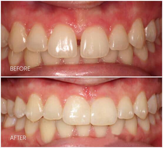 Before-After-diastemaClosure