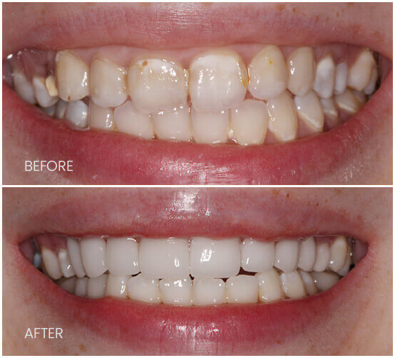 Before-After-fullUpprReconstruction
