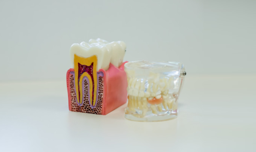 gum_disease_treatment